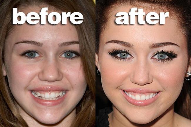 Uite cum aratau vedetele inainte de a-si repara dintii! FOTO!