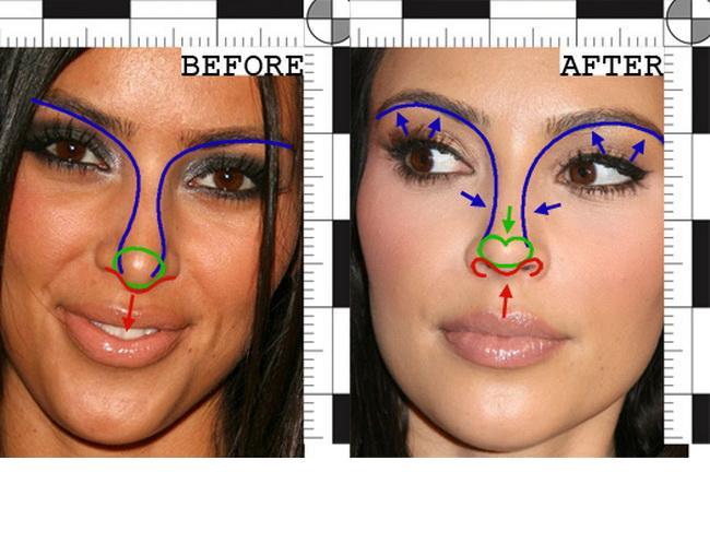 Пластическая операция ринопластика (пластика носа)
