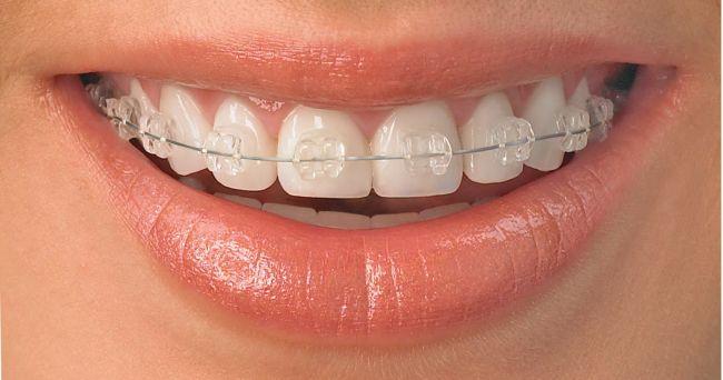 Ai dintii strambi? Iata cateva aparate dentare de ultima generatie