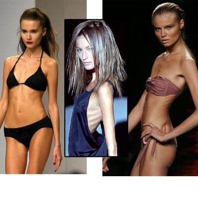 Au murit pe catwalk din cauza anorexiei. Modele care au fost invinse de anorexie