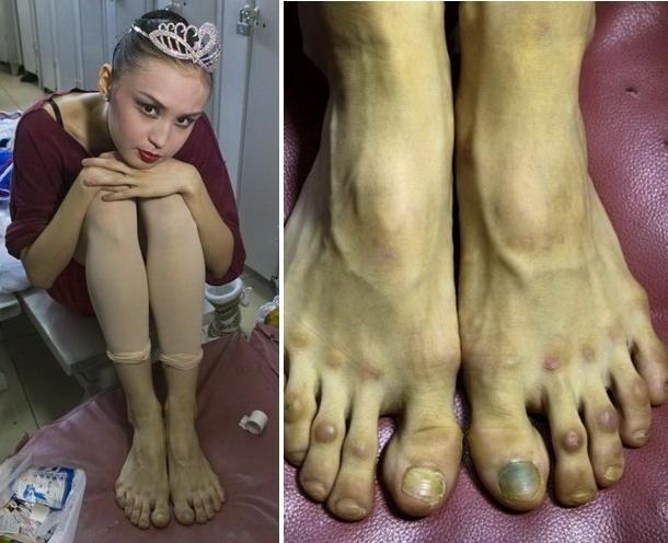 Pretul succesului, platit cu durere. Asa arata picioarele unei adolescente care isi urmeaza visul