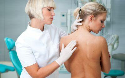 Lupta impotriva cancerului de piele: verifica-ti anual alunitele!