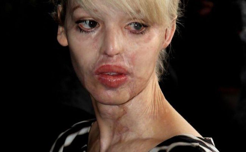 Aparitie impecabila a femeii pe care iubitul a desfigurat-o cu acid. Cum arata acum Katie Piper