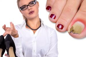 Trage cortina peste micoza unghiilor si nu te ascunde! Cum poti contacta micoza unghiei?