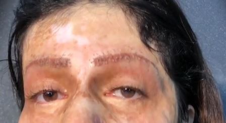 Un make-up artist din Azerbaijan face minuni pentru femeile arse cu acid. Cum arata tinerele dupa ce sunt machiate de el