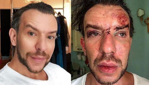 Femeile care l-au bătut pe Stephan Pelger la Cannes au ajuns la închisoare. Designerul a dat nas în