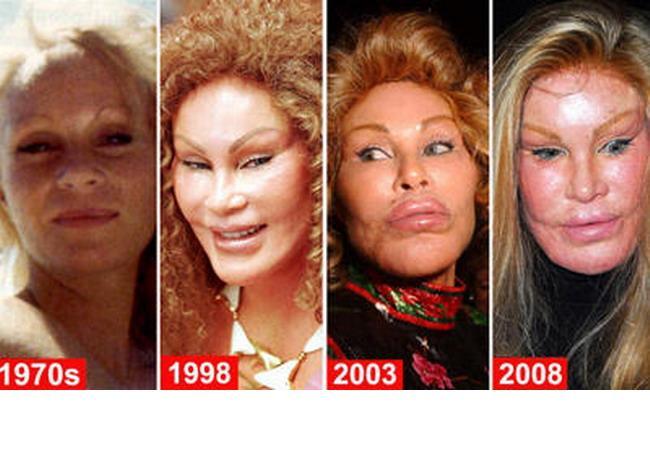 Cum au transformat-o operatiile estetice pe Jocelyn Wildenstein dintr-o femeie frumoasa in cea mai infricosatoare celebritate | Perfecte.ro